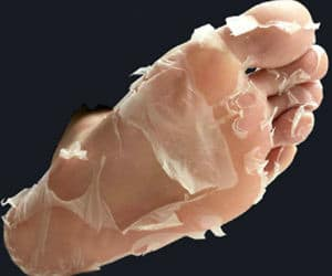Deep Exfoliation Foot Peel